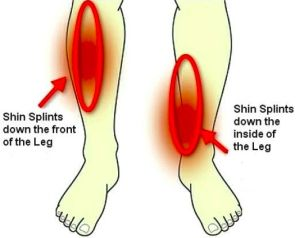 The two main areas of shin splint pain